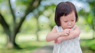 Bác sĩ Nhi giải đáp: Trẻ bị muỗi đốt nên bôi gì?
